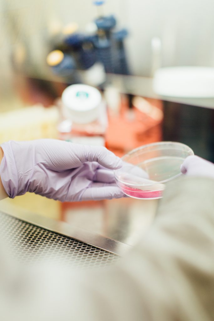 Stem cells for stroke recovery